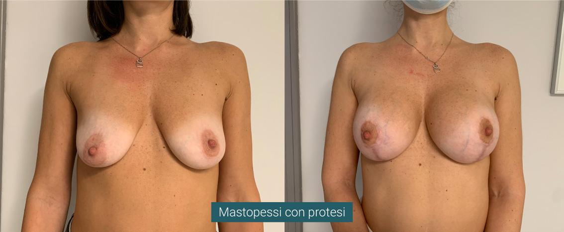 Mastopessi con protesi
