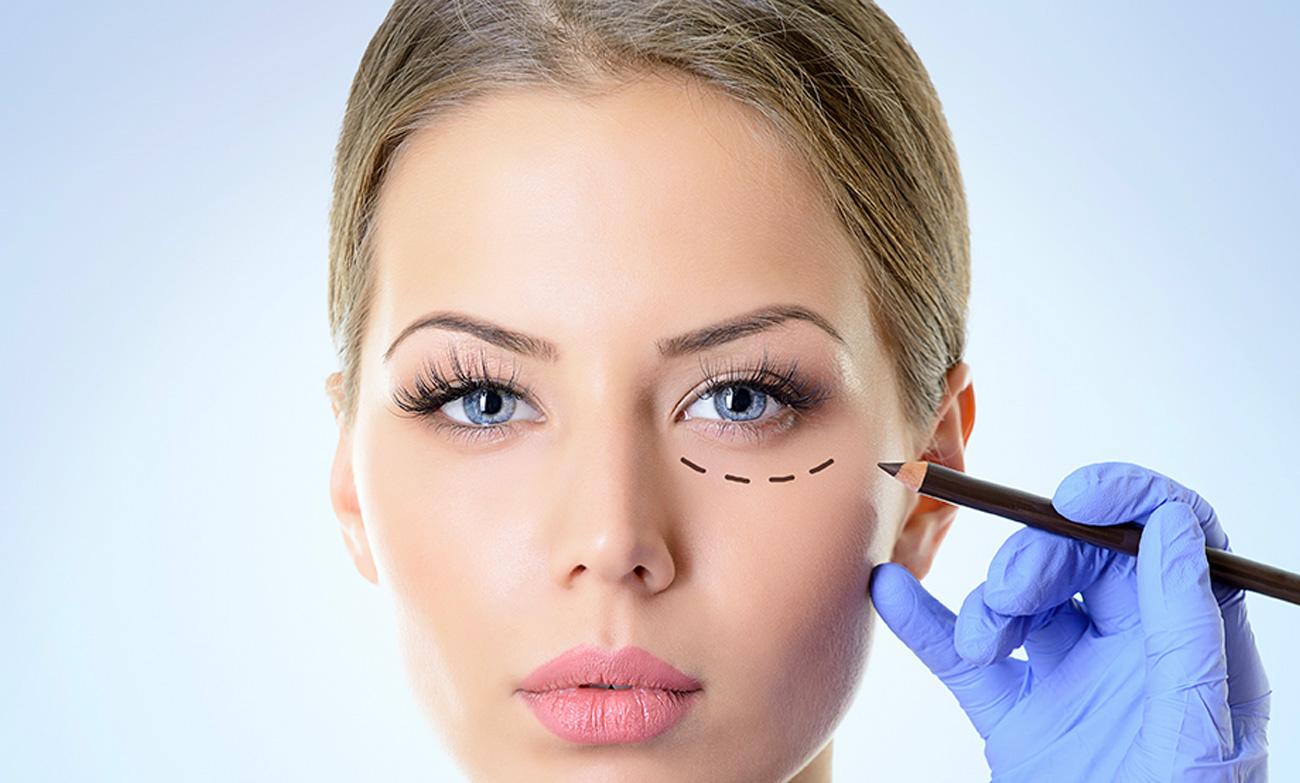 chirurgia-estetica-blefaroplastica
