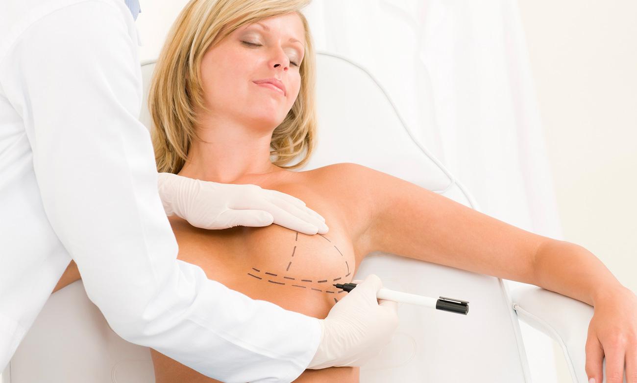 chirurgia-estetica-mastoplastica-additiva