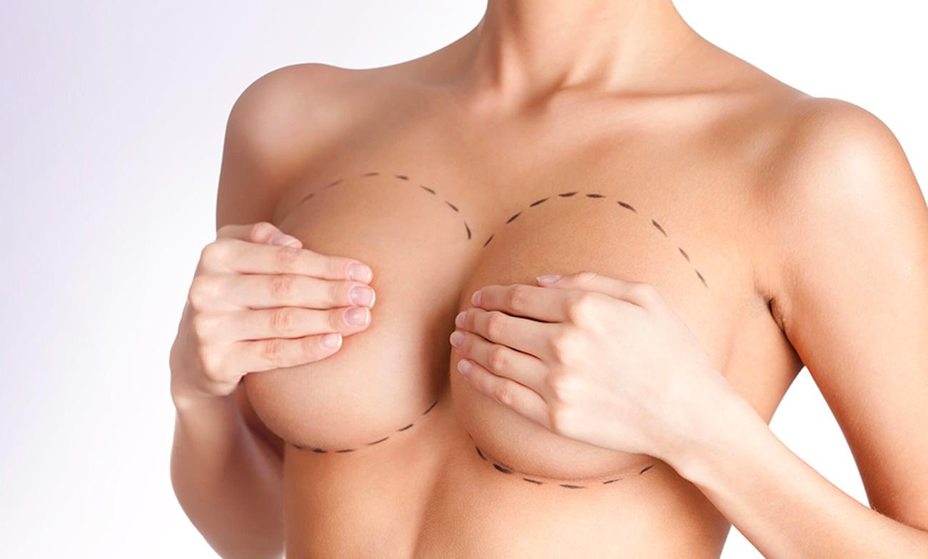 chirurgia-estetica-mastoplastica-riduttiva