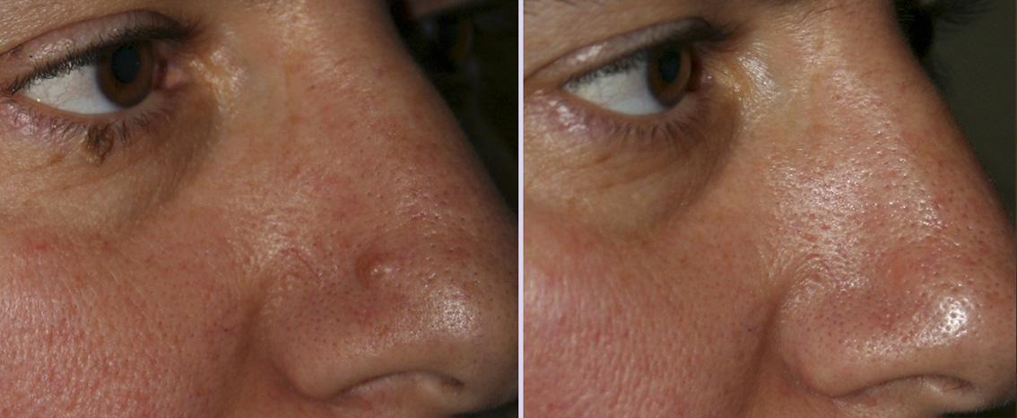 nevo-dermico-naso